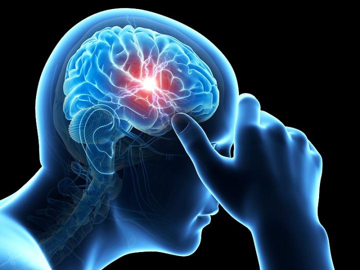 Migraines & MedicalTreatment